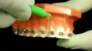 Bracesquestions.com - Brushing With Braces, How to Brush Teeth