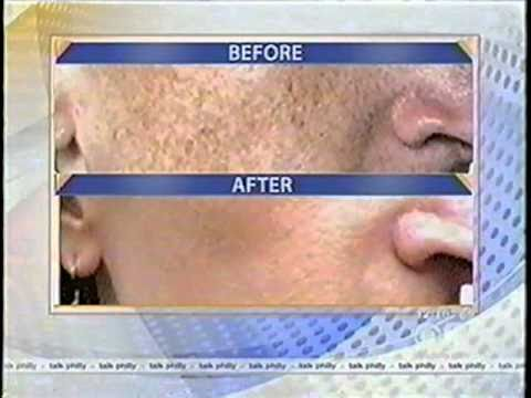 Laser treatment that zaps away all visible sun damage!