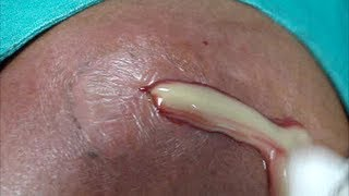 Large abscess ( pus ) drainage