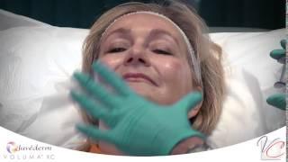 VOLUMA™ XC - Vein & Cosmetic Center of Tampa Bay Thumbnail