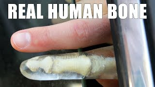 Can a Car Window Break Your Finger? thumbnail