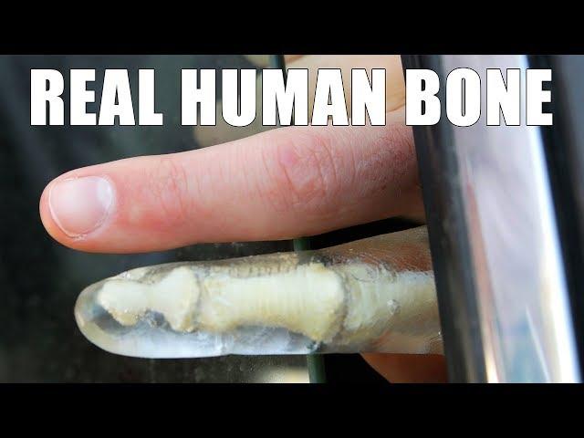 Can a Car Window Break Your Finger?