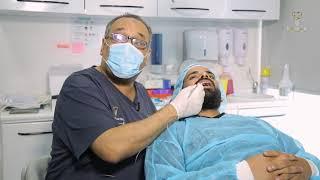 زراعة الأسنان في 5 دقائق بدون خوف و بدون الم