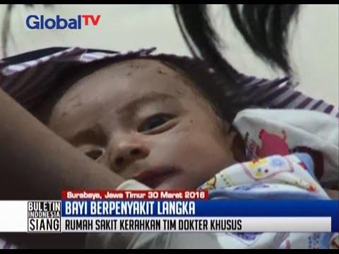 Kondisi kulit penuh luka melepuh, bayi Wasesa alami Epidermolysis Bullosa - BIS 30/03