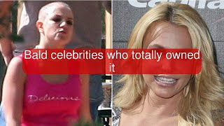 Bald celebrities who totally owned it