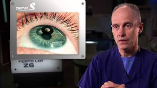 The new Z Lasik Z procedure with the FEMTO LDV Z Models