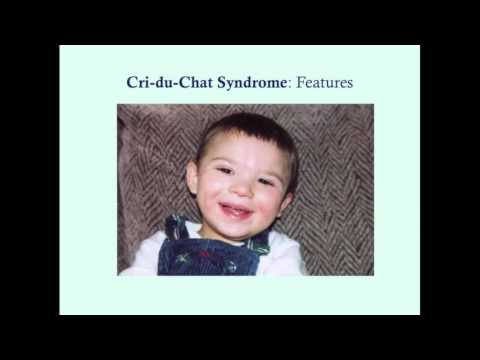 Cri Du Chat - CRASH! Medical Review Series