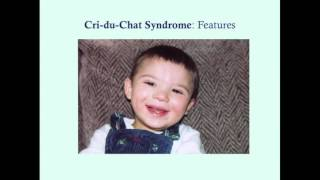 cri du chat crash medical review series