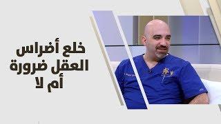 د. خالد عبيدات - خلع أضراس العقل ضرورة أم لا؟