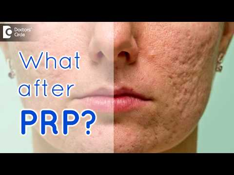 Can pores re-open post PRP sittings? - Dr. Rajdeep Mysore