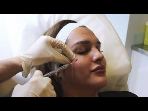 Dark Under Eye Circle Treatment with Dermal Filler using Blunt Tip Cannula Injection
