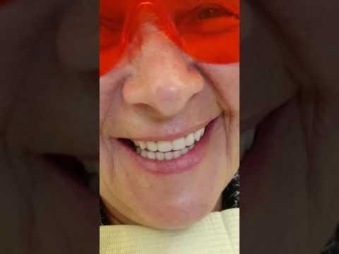All on 4 - естественные, как настоящие зубы за 1 день ...