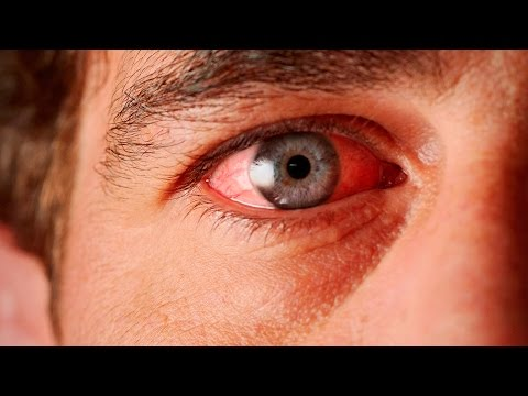 постоянно красные глаза причины