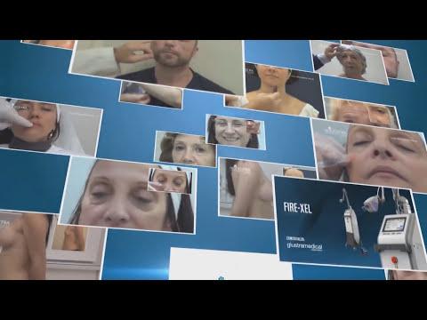 Pexia mamaria, colocación de prótesis (15049)