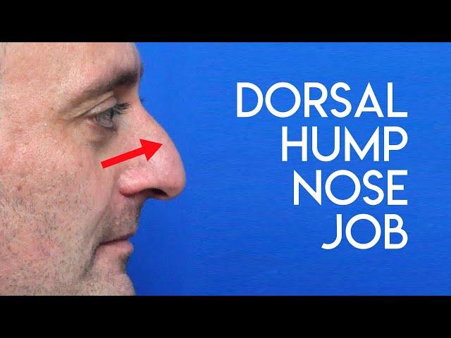 Dorsal Hump Nose Job
