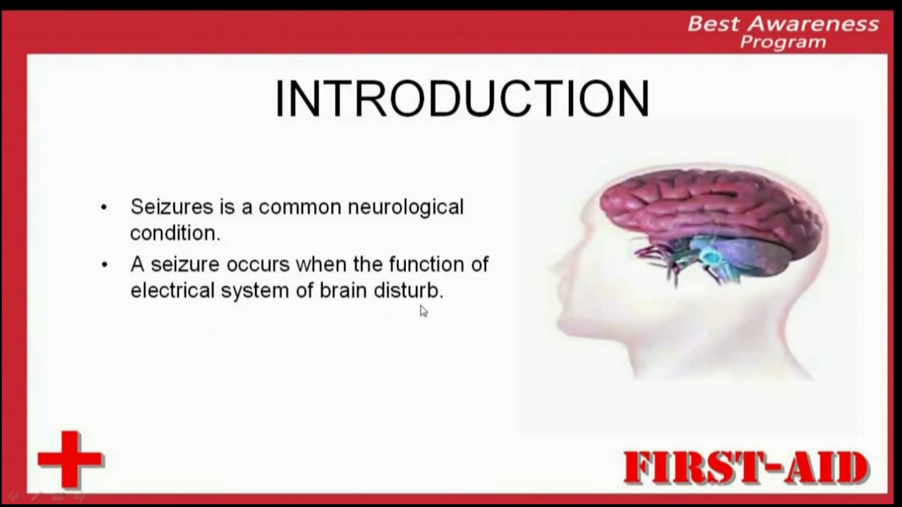 introduction of seizures, what is seizure, definition of seizure
