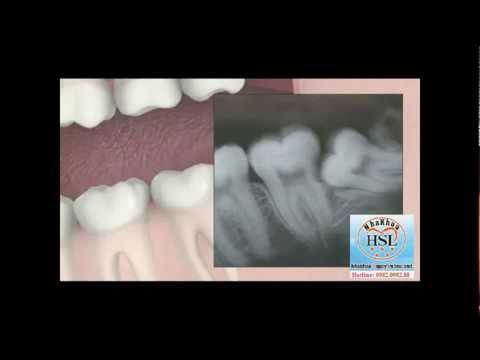 Nhổ răng số 8 mọc lệch không sang chấn