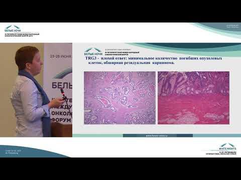 Оценка лечебного патоморфоза при раке прямой кишки. Подходы, результаты