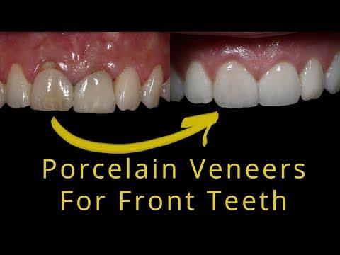Natural Looking Porcelain Veneers For Broken Teeth