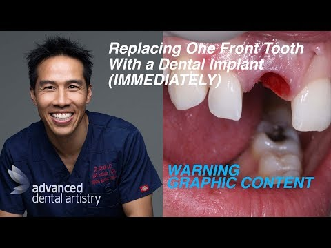 Replacing one front tooth with dental implant