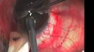 Intracapsular Cataract Extraction ICCE John Hovanesian, MD