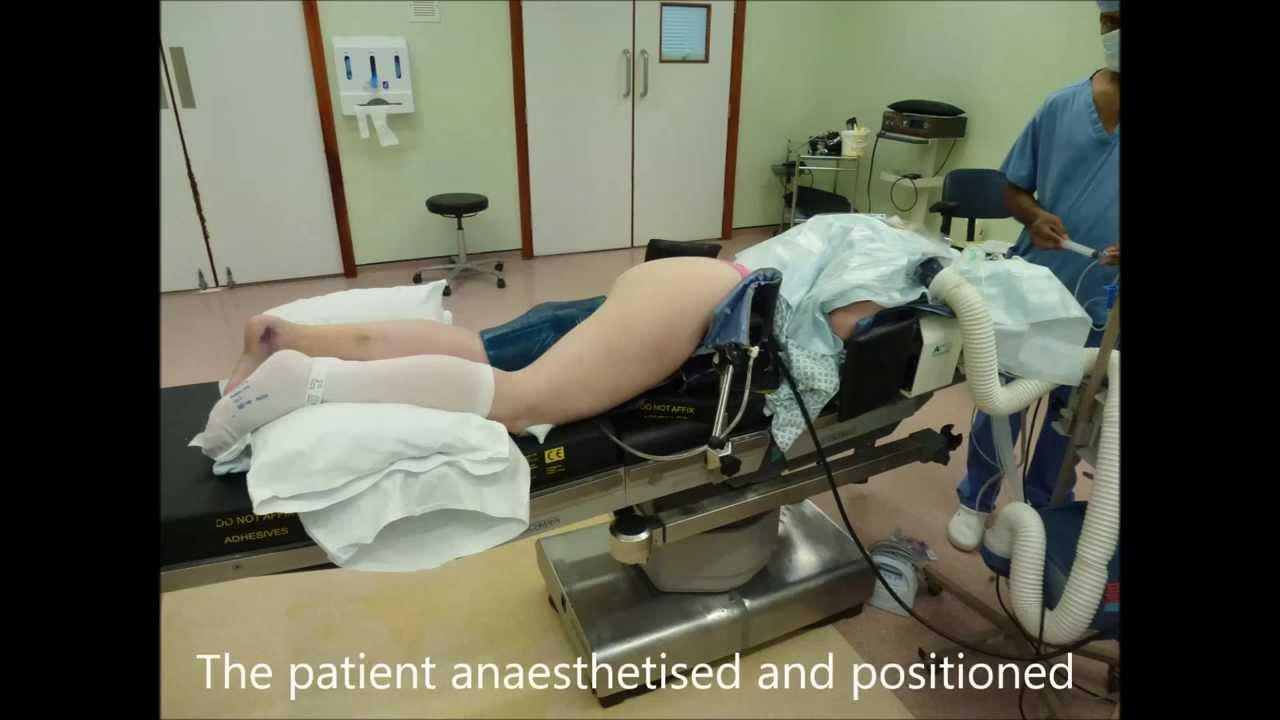 Achilles Tendon Rupture - Surgical Repair - YouTube