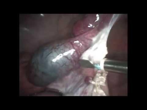 Прогрессирующая трубная беременность в истмическом отделе..