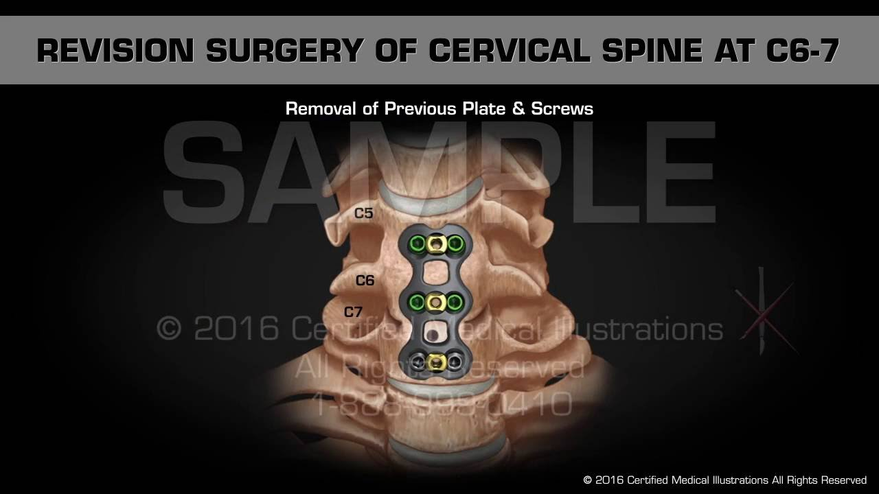 Revision Surgery of Cervical Spine at C6-7 - Medical Animation