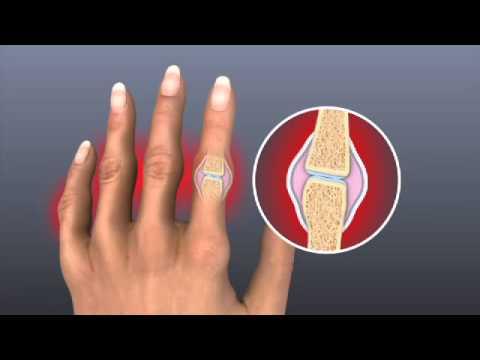 Rheumatoid Arthritis - Mayo Clinic