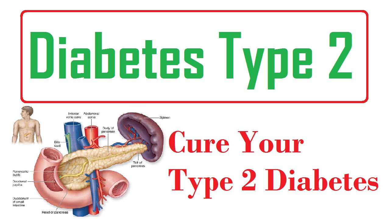 diabetes type 2 :- cure your type 2 diabetes ! (presentation on, Skeleton