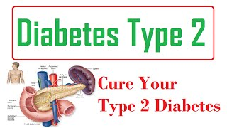 Click here - http://diabetescure9.com/, type 2 diabetes, diabetes is a group of metabolic diseases in which the person has high blood glucose or sugar. it either due to inadequate insulin ...