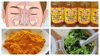 5 remèdes naturels pour la sinusite
