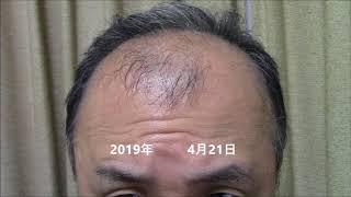 ミノ 塗り 【AGA治療118日目】塗りミノと洗髪についての疑問?
