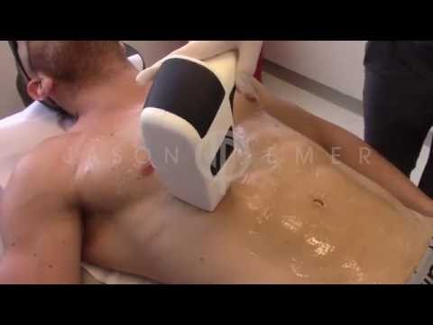 Laser Hair Removal Beverly Hills, California / Fastest Diode Laser /MeDioStar NeXT Asclepion from YouTube · Duration:  54 seconds