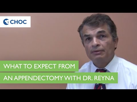 Appendix & Appendicitis: Dr. Reyna - What To Expect With Surgery