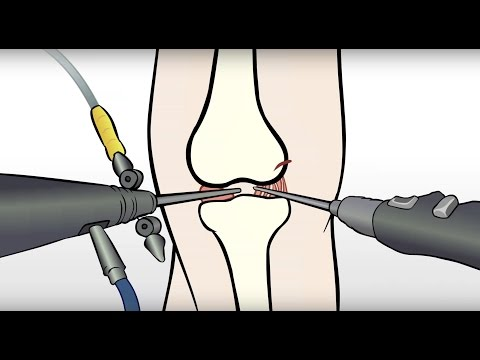 Regenexx Alternative To Meniscus Surgery / Meniscectomy