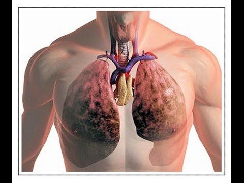 Лечение туберкулеза легких у взрослых  Как вылечить туберкулез  Как передается туберкулез