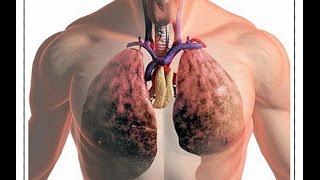 видео Закрытая форма туберкулеза