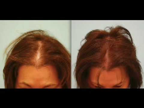 DALLAS FEMALE HAIR TRANSPLANT UPDATE:  DEBBIE AT 1 YEAR AFTER HAIR TRANSPLANT