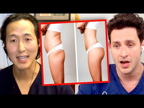 The Deadly Truth Behind Brazilian Butt Lift Surgery (BBL)