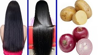 How To Grow Long and Thicken Hair Faster With Onion & Potato !! Super Fast Hair Growth