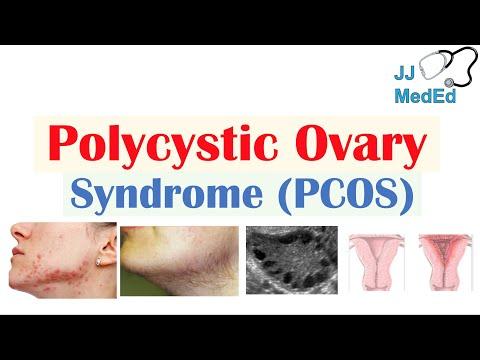 Poliklinika Harni - Pojašnjeni dijagnostički kriteriji za PCOS; ime treba promijeniti