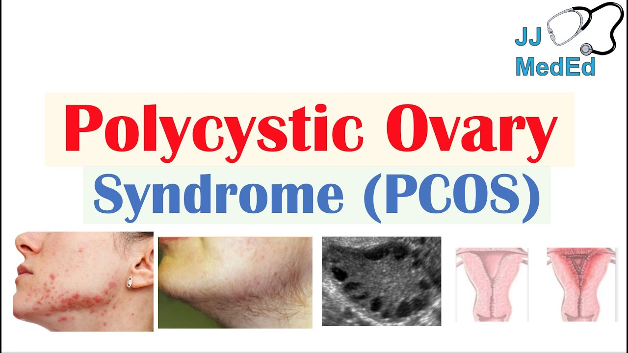 What Is Polycystic Ovary Syndrome recommendations
