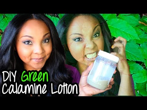 My Poison Ivy Story + DIY Green Calamine Lotion