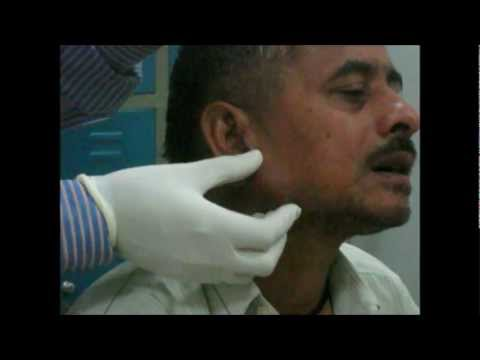 Examination Of Parotid Gland