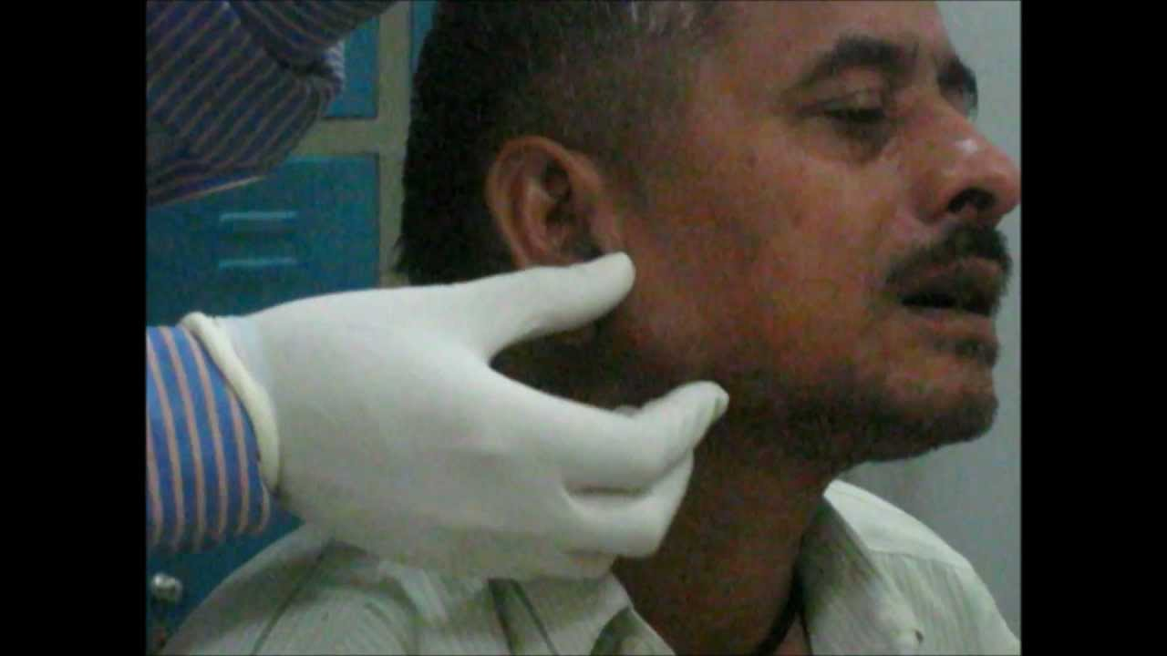 Examination Of Parotid Gland - YouTube