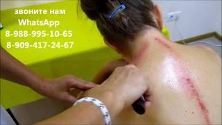 Как делать массаж  гуаша (секрет исюэтуна)