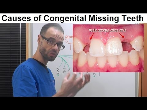 Causes Of Dental Anomalies, Congenital Missing/Absence Of Permanent Teeth By Dr Mike Mew