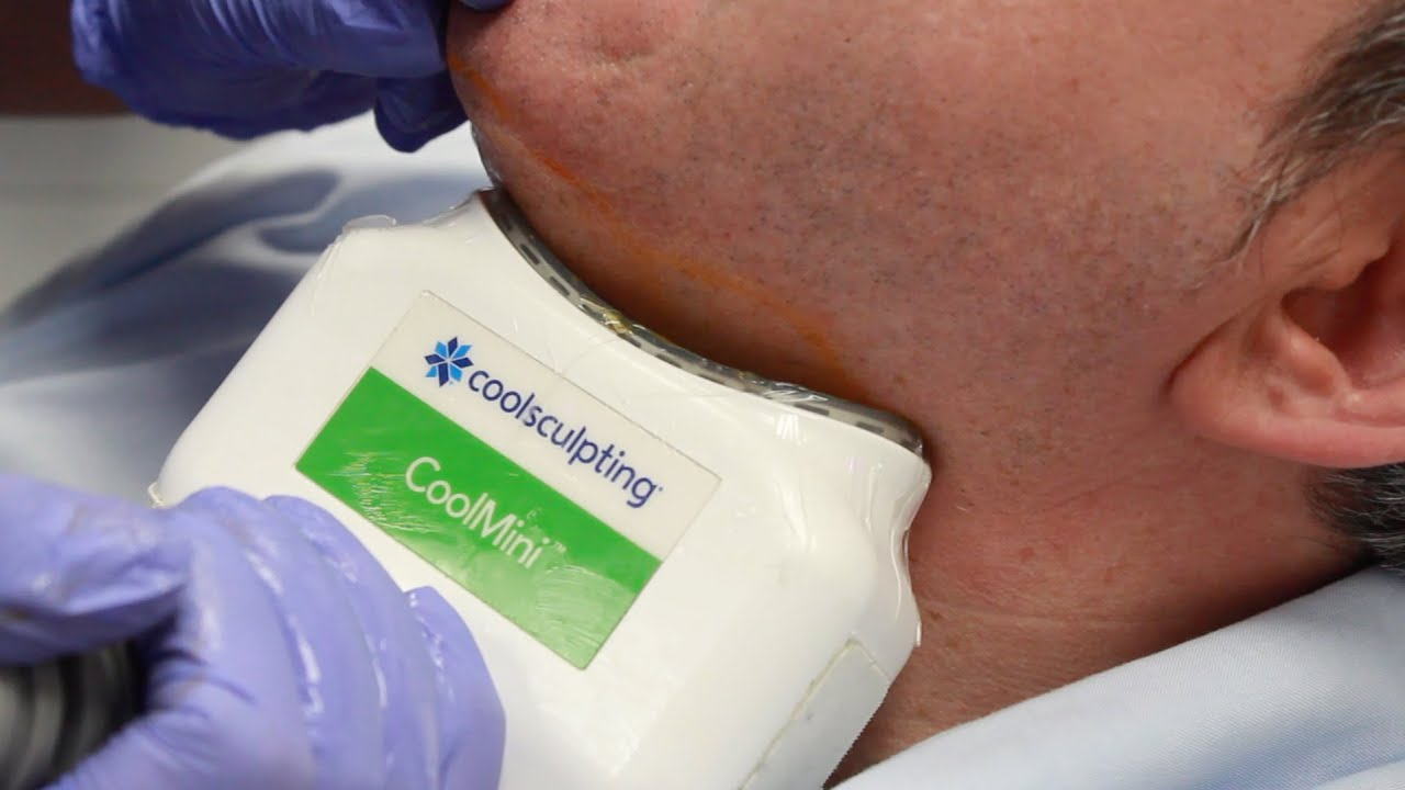 How to freeze your fat away? Coolsculpting - Fat Freezing