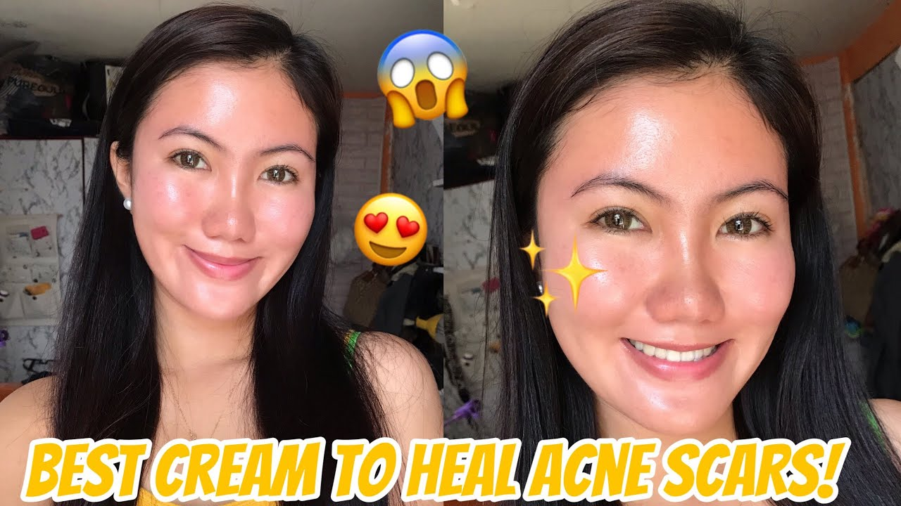 How To Remove Acne Scars Pimple Marks Madeca Derma Sasay